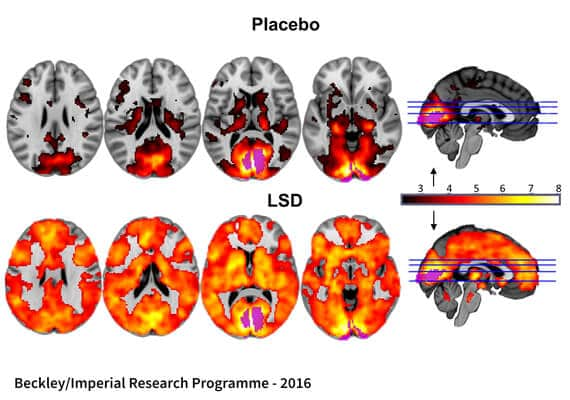 MRI of Brain on LSD